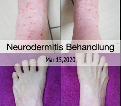 Neurodermitis-Behandlung