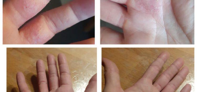 Neurodermitis-Hautbehandlung ohne Chemie!!