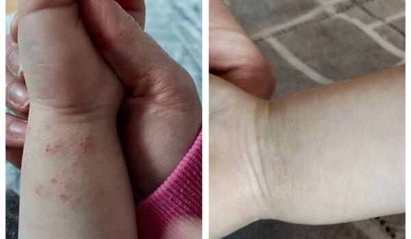 Eine weitere erfolgreiche Hautbehandlung ohne Chemie!!