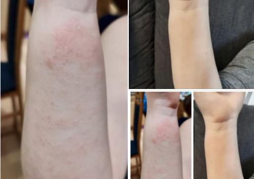 Hier noch eine erfolgreiche Hautbehandlung ohne Chemie!!